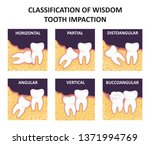 classification of wisdom tooth... | Shutterstock .eps vector #1371994769