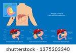 whipple procedure... | Shutterstock .eps vector #1375303340