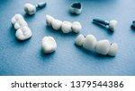 surgical orthodontics. teeth... | Shutterstock . vector #1379544386