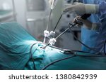 Small photo of The surgeon's holing the instrument in abdomen of patient. The surgeon's doing laparoscopic surgery in the operating room. Minimally invasive surgery.
