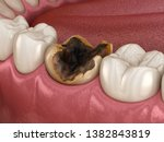 molar teeth damaged by caries....   Shutterstock . vector #1382843819