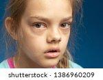 conjunctivitis in front of a... | Shutterstock . vector #1386960209