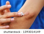 Small photo of Close up at Asian woman's hand is applying medical cream at keloid scar (Hypertrophic Scar) at her elbow cause by bicycle accidental.Concepts of health care and beauty.