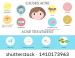 acne causes and treatment... | Shutterstock .eps vector #1410173963