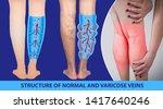 varicose veins on a female...   Shutterstock . vector #1417640246