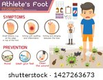 athlete s foot or hong kong... | Shutterstock .eps vector #1427263673