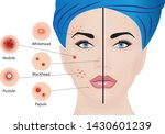 acne types on a woman face... | Shutterstock .eps vector #1430601239