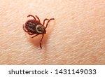 Macro of dangerous disease carrier bloodsucker tick adult female (Dermacentor variabilis) on human skin