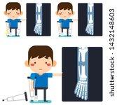 vector illustration  leg x ray...   Shutterstock .eps vector #1432148603