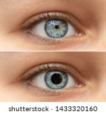 A Closeup View On The Blue Eyes ...