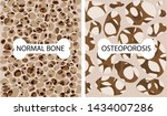 bone with osteoporosis  normal... | Shutterstock .eps vector #1434007286