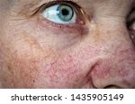woman face skin with vascular...   Shutterstock . vector #1435905149