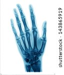 X Ray Picture Of Hand