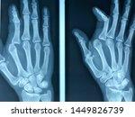 Radiograph Of Hand. Dislocation ...