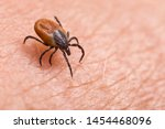 Infected female deer tick on...
