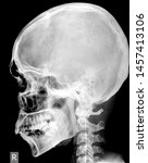Small photo of Radiographic positioning terminologySchedel ap lateral radiology x ray front position with black and white color. Reference for Radiographic terminology student.