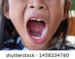 stacked front tooth  a problem... | Shutterstock . vector #1458334760