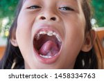stacked front tooth  a problem... | Shutterstock . vector #1458334763