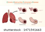 copd  chronic obstructive... | Shutterstock .eps vector #1471541663