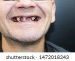 The Man Has Rotten Teeth  Teet...
