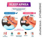 Sleep Apnea Vector Illustratio...