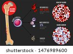 leukemia and normal blood under ... | Shutterstock . vector #1476989600