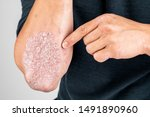 Small photo of Man with sick hands, dry flaky skin on his hand with vulgar psoriasis, eczema and other skin diseases such as fungus, plaque, rash and blemishes. Autoimmune genetic disease.