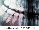 x ray of teeth   Shutterstock . vector #149686130
