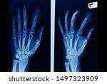 Anteroposterior And Oblique...