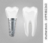 dental implant. realistic... | Shutterstock .eps vector #1499382263