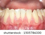 Small photo of Gingival recession, also known as receding gums, is the exposure in the roots of the teeth caused by a loss of gum tissue and/or retraction of the gingival margin from the crown of the teeth.