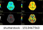 ct brain perfusion or ct scan... | Shutterstock . vector #1513467563