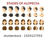 alopecia stages set. hair loss  ... | Shutterstock .eps vector #1524127553