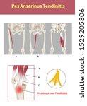Medical Illustration To Explain ...