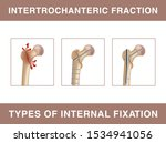 Intertrochanteric Fracture....