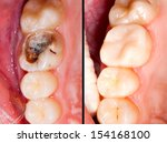 Small photo of Decayed tooth before and after restorative treatment