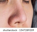close up wide pores skin on dry ... | Shutterstock . vector #1547289209