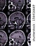 mri scan image of brain for... | Shutterstock . vector #156416669