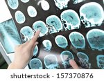 doctor view output ct scan. | Shutterstock . vector #157370876