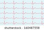 heart normal sinus rhythm on... | Shutterstock .eps vector #160487558