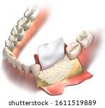 Dental Barrier Regenerative...