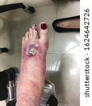 Small photo of St. Louis, MO / USA - September 17, 2019: Picture 5. Progressively worse rash/lesion on left foot of female caused by vasculitis (polyarteritis nodosa).