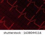 Cardiogram Ekg With The...