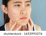 Small photo of Close up of worrying woman with problems of acne inflammation (Papule and Pustule) on her face. Conceptual of problems on woman skin.