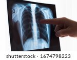 Lung Radiography Concept....