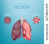 image of a healthy lung and a... | Shutterstock .eps vector #1674841309