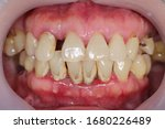 Small photo of Periodontitis is often known as 'Gum Disease' and is a very common condition in which the gums and deeper periodontal structures become inflamed.
