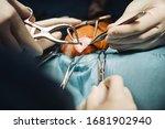 photo of surgeons hands during... | Shutterstock . vector #1681902940