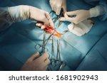 photo of surgeons hands during... | Shutterstock . vector #1681902943