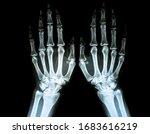 Film X Ray Of Rheumatoid...